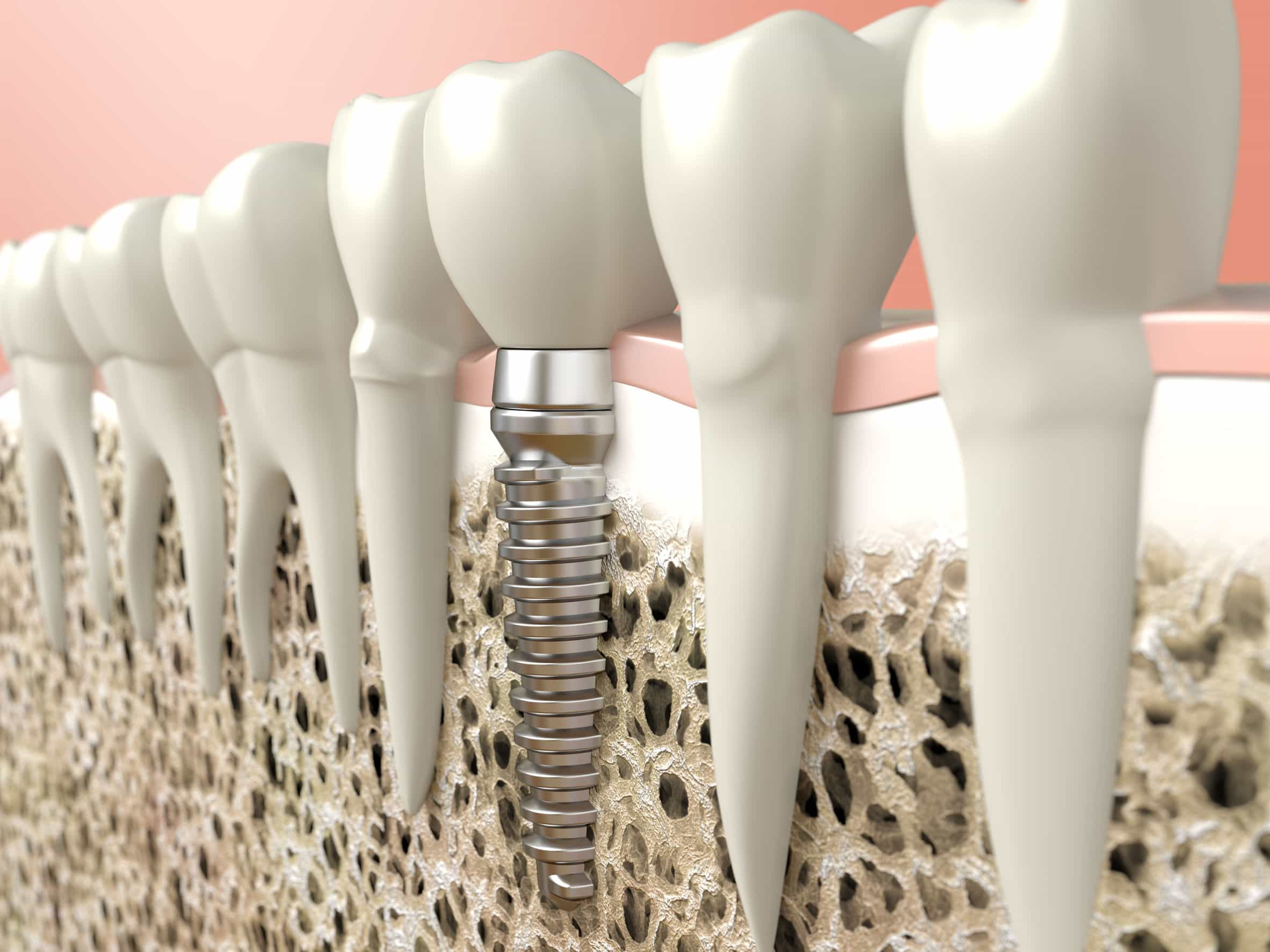 26311858 - very high resolution 3d rendering of a dental implant