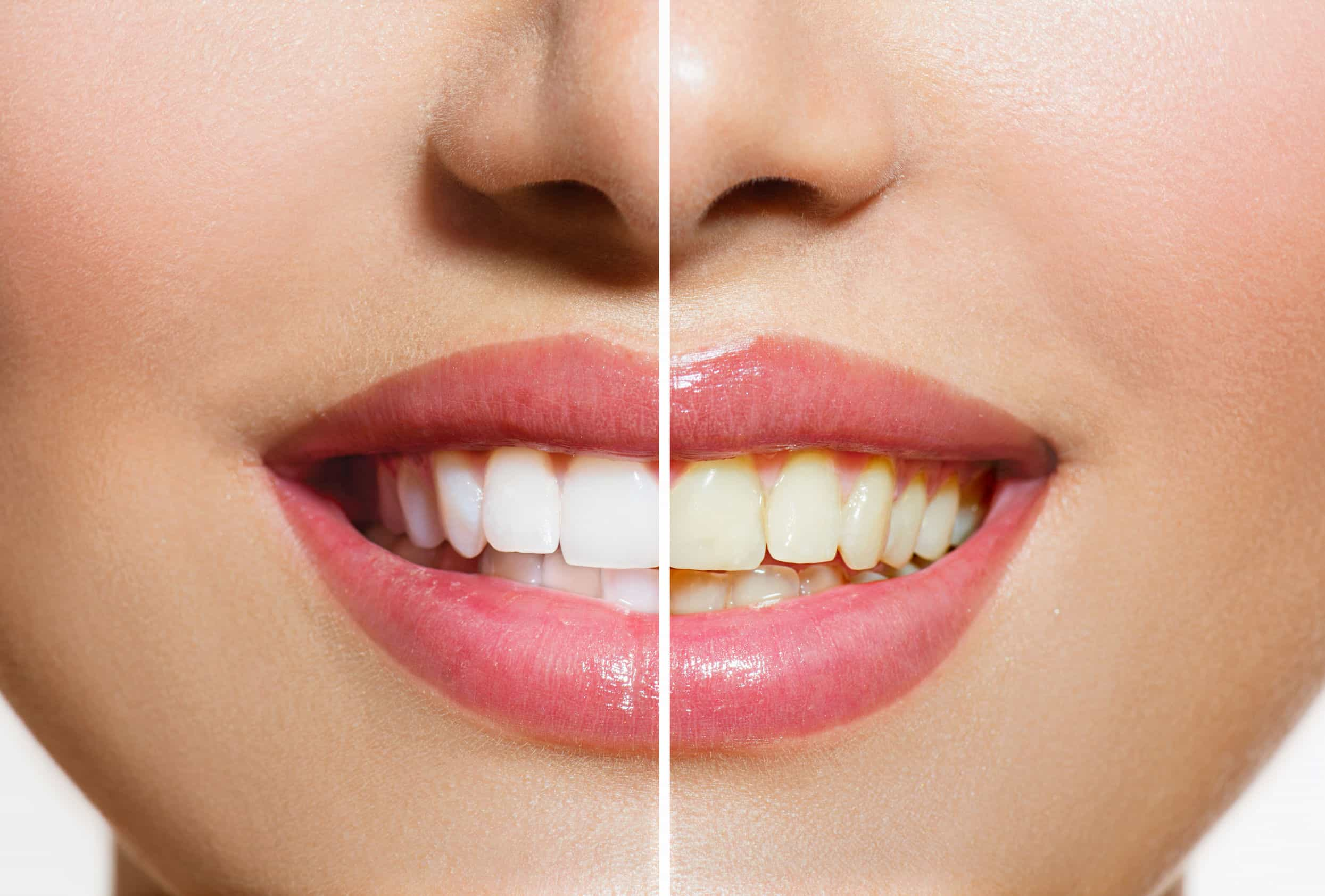 24633467 - woman teeth before and after whitening  oral care